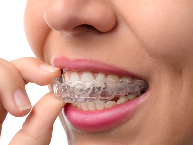 Invisalign - Near invisible aligners - Available in Hobart